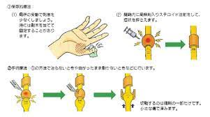 バネ 指 手術 費用