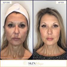 Halo Fractional Resurfacing Vancouver Bc Laser Skin