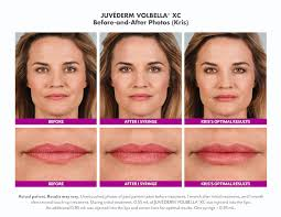 what fillers are best for me