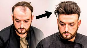 Baldness Hair Style mens hair loss treatment hairstyle transformation does it work 5298 by wearticles.com