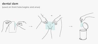 Lgbtqia Safe Sex Guide