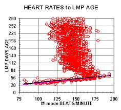 Heart Beat Chart Baby Bedowntowndaytona Com