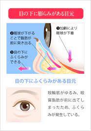 目の下 の クマ 病気