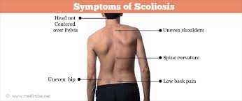 Scoliosis Degrees Of Curvature Chart Scoliosis Facts Causes Types Symptoms Treatment