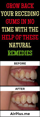 98 best Home Remedies/Life Hacks images on Pinterest | Beauty tips ...