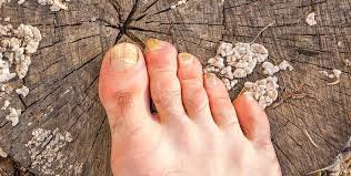 all you need to know about fungal nail infections