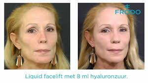 Liquid facelift ervaringen
