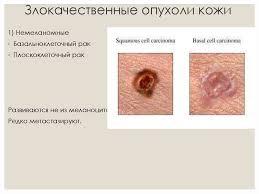 Опухоли виды развитие лечение реферат курсовая работа  Реферат тему рак кожи