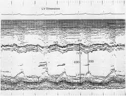 A quantitative relationship of electrocardiographic criteria of left  ventricular hypertrophy with echocardiographic left ventric
