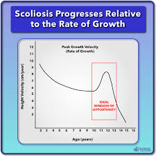 Scoliosis Chart Scoliosis Treatment For Children And Teens Scoliosis Care