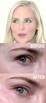 carmindy before and after using sio silicone patches to reduce fine lines around her eyes makeup artist and beauty expert what not to wear true beauty