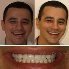 Aesthetic Smiles By Design Cosmetic Dentistry Turkey Get The Best For Less