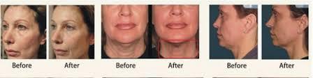 hifu behandeling gezicht