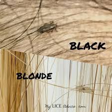 black children get lice too unique