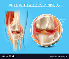 Injured Knee Joint With Torn Meniscus Chart