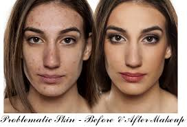 how to apply makeup if you have acne e skin
