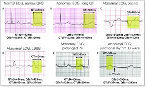 Ecg Chart Examples Examples Of Qt Measurement And Correction Qtc Ecg Strips