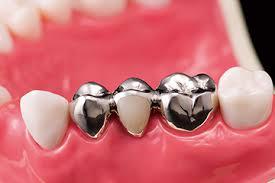 「ブリッジ 歯科」の画像検索結果