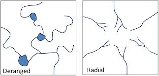 Radial Drainage Pattern