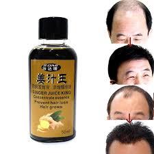 Hair Loss Product hair care Rapid effects postpartum Seborrheic alopecia  Restorer medicine densely growth shampoo cream Dandruff|alopecia products| hair losshair loss products - AliExpress