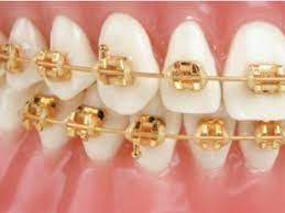 Marquis TruGold Bracket from Ortho Technology, Inc. | Dentalcompare: Top  Products. Best Practices.