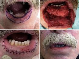 surgical repair of l defect