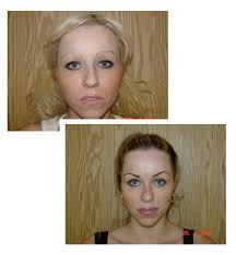 eyebrow enhancements