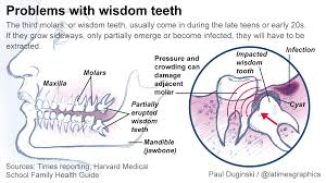 The dentist can either remove the tooth or add a filling. Dentists Debate Need To Extract Wisdom Teeth Los Angeles Times