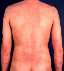 Allergic Contact Dermatitis Whole Body — brad.erva-doce.info