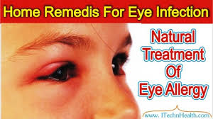 easy home remes for eye infection