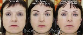заживший перманентный макияж бровей век и губ татуаж бровей