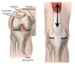 <b>Knee</b> Dislocation and Instability in <b>Children</b> - OrthoInfo - AAOS