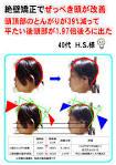 Image result for 絶壁 手術 ビフォーアフター