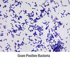 Gram Positive Bacilli Differences Between Gram Positive And Gram Negative Bacteria