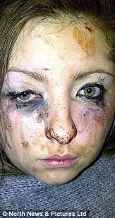 Charlotte Barber Charlotte Barber 18 May Be Brain Damaged After Being Beaten By A