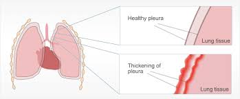 These microscopic fibers cause irritation and inflammation in your pleura, which is comprised of two walls of mesothelial cells. List Of Asbestos Related Diseases
