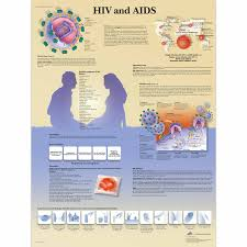 Biology Charts And Posters Hiv And Aids Chart