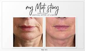 vertical lip lines or wrinkles case