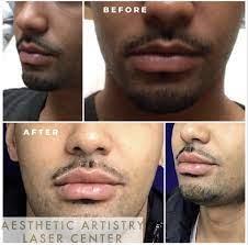 annapolis lip dermal fillers for men