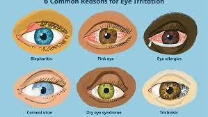 top 6 reasons for eye irritation