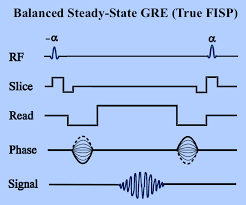 Mri Sequences Chart True Fisp Fiesta Questions And Answers In Mri