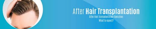 After Hair Transplantation Operation After Hair Transplant