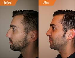 Health insurance companies sometimes cover nose jobs but only if they're functional rhinoplasties, meaning they are designed to correct anatomical issues and breathing problems. Rhinoplasty Cost Nyc Nose Job Cost New York