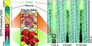 EDTA-treated cotton-<b>thread</b> microfluidic device used for one-step ...