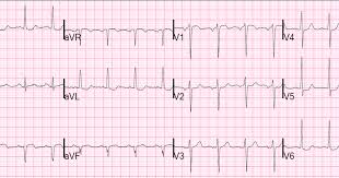 Image result for graft ecg
