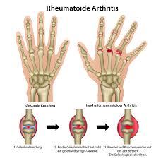 Rheuma : Formen und Symptome der Gelenkerkrankung