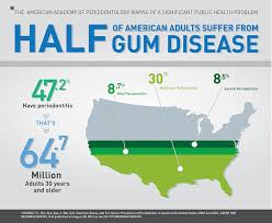 Cdc Communicable Disease Chart Cdc Half Of American Adults Have Periodontal Disease