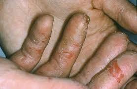 hand eczema national eczema ociation
