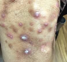 What's Causing This Intensely Itchy Rash on a Woman's Lower ...