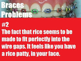 When You Have Braces And You Eat Rice Almost Everyday Anyways And Adorable Braces Quotes